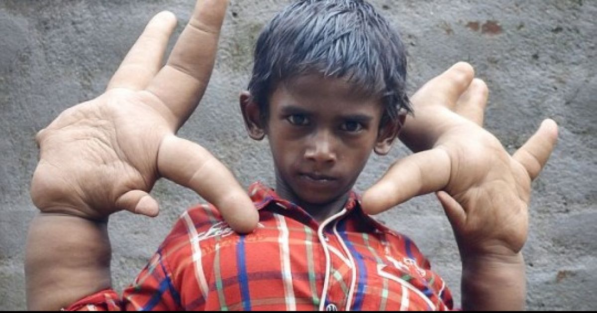 'Boy With The World's Biggest Hands' To Have Life-Changing Operation
