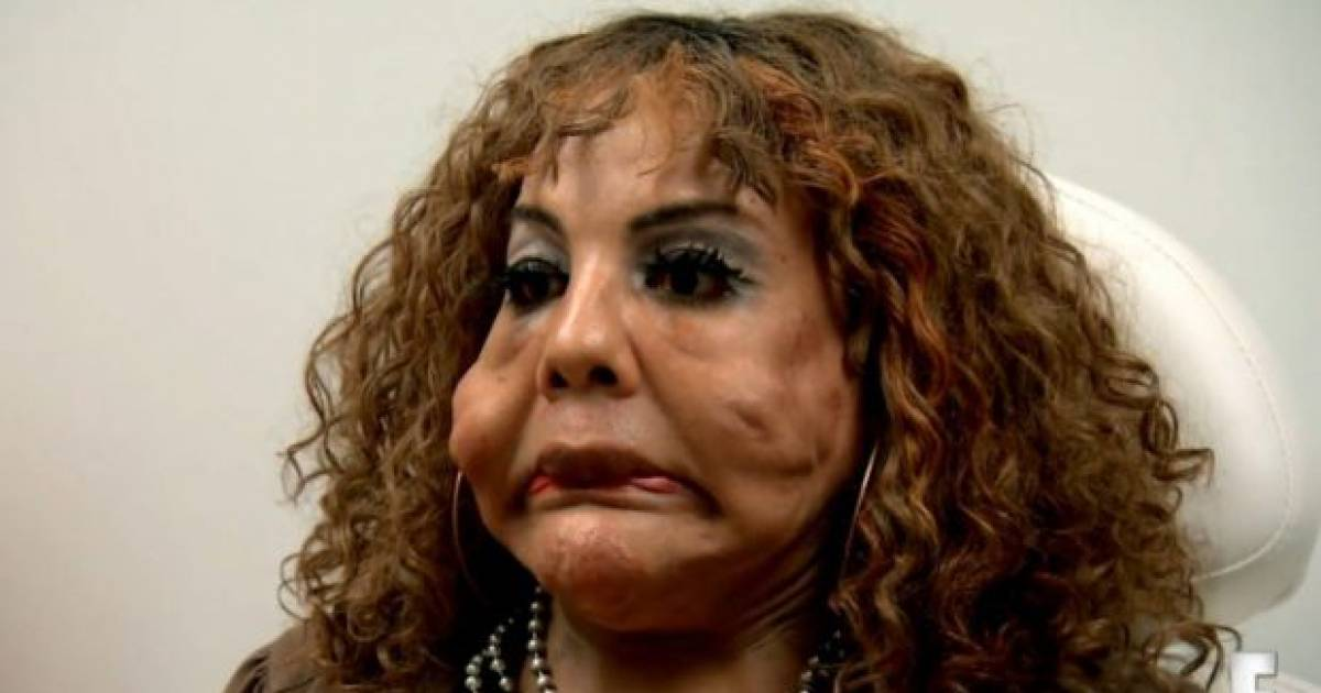 10 Years Ago, She Was Injected With Cement And The Work Done To Fix Her Face Is Incredible