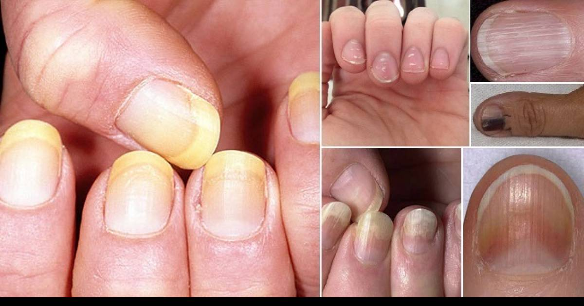 12 Things Your Fingernails Can Tell You about Your Health
