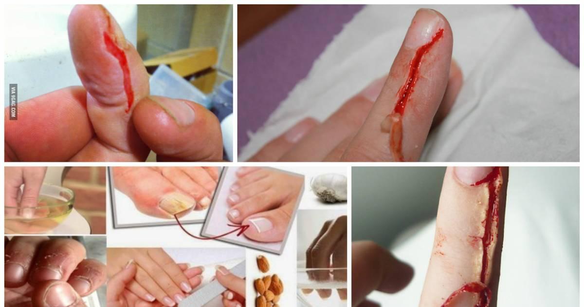 how to heal bitten fingers