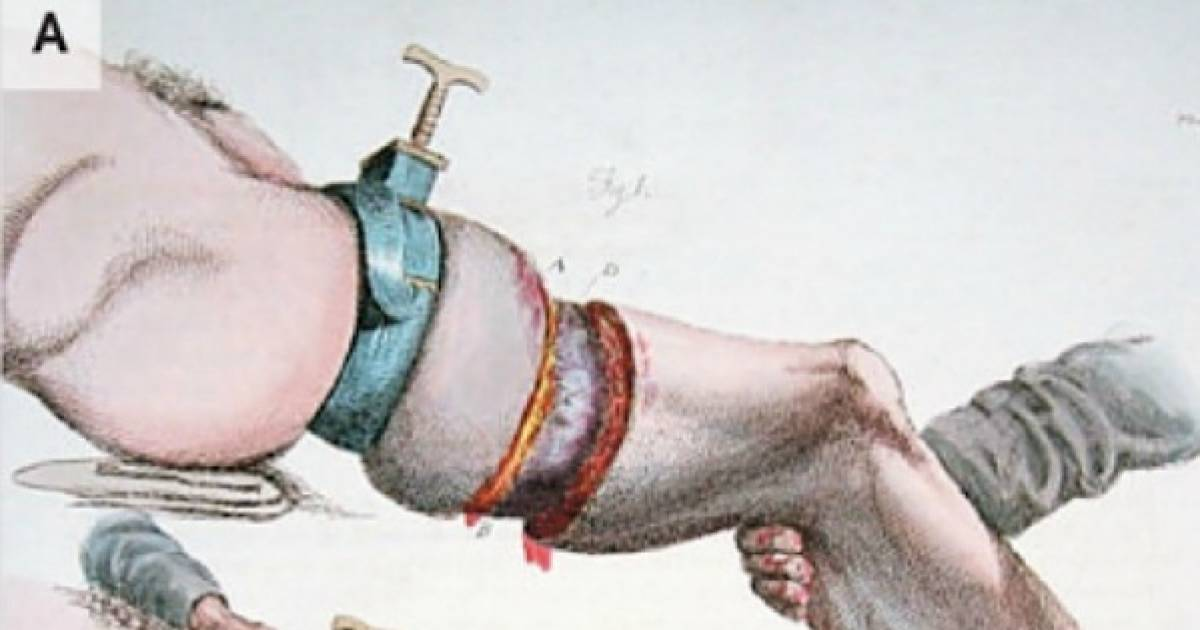 Amputation Tools From Before There Were Pain Killers