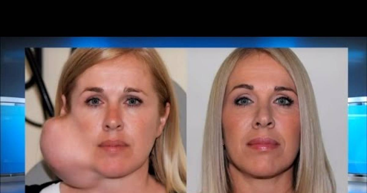Anguished Mother Has A Massive Tumor Removed From Her Face