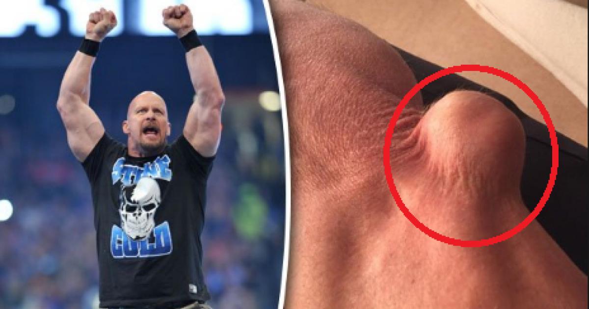 WWE's Steve Austin Shows Off Shocking Elbow Injury