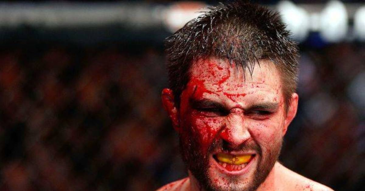 Most Horrific Knock Out In MMA