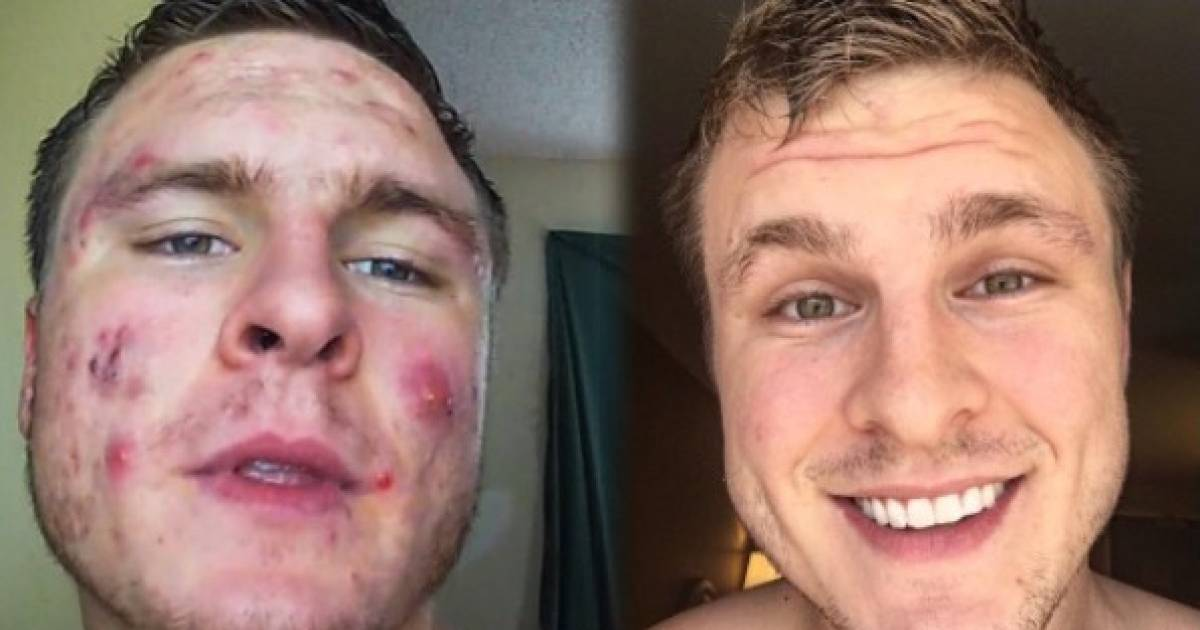 This Man With Severe Acne Reveals His Secret To Unbelievable Skin