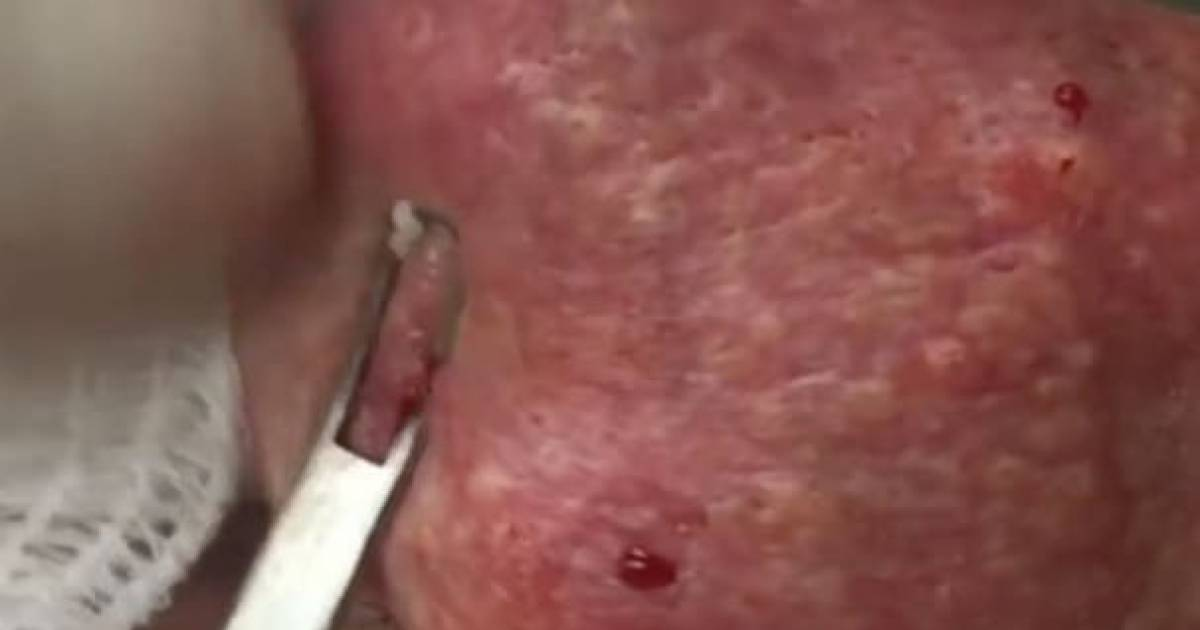 When All His Blackheads Were Popped Open, This Is What Happened