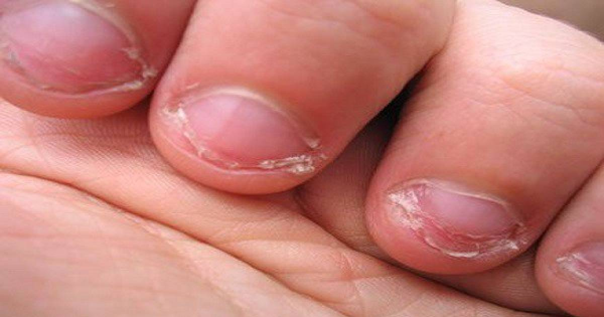 Doctor Says That The People Who Bite Their Nails Have Specific Personality Traits