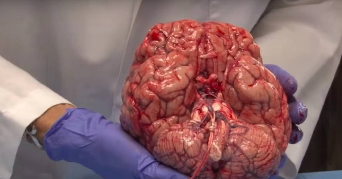 Watch A Neuroanatomist Explain The Human Brain With A Fresh Brain In Her Hands