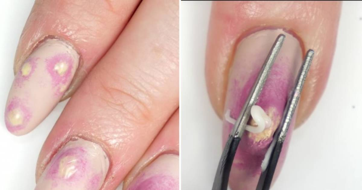 Pimple Popping Nails Are Trending And They'll Make You Want To Vomit