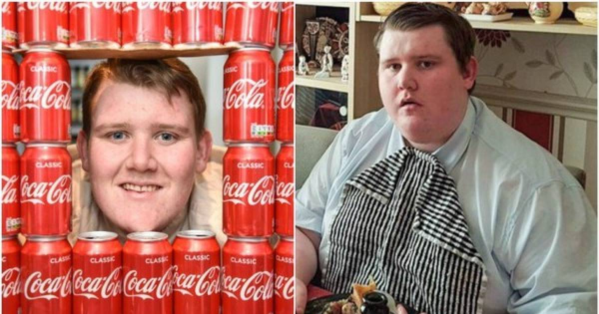 Obese Man Loses 154 Pounds After He Stopped Drinking 40 Cans Of Coca-Cola A Day