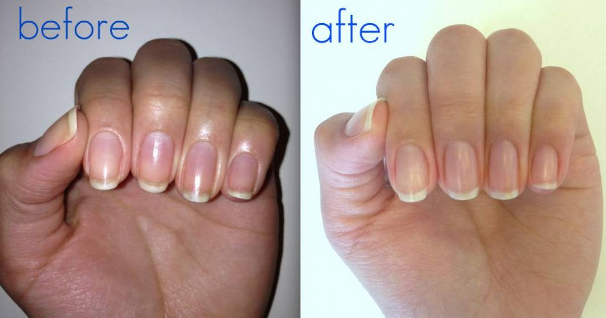 10 Super Easy Methods To Whiten Nails In One Minute