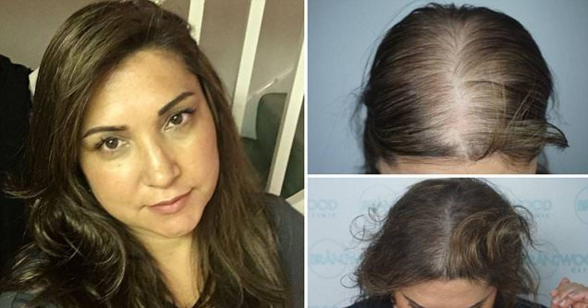 This 46-Year-Old Woman Spent £25,000 On A HAIR TATTOO To Conceal Balding And Get Her Confidence Back!