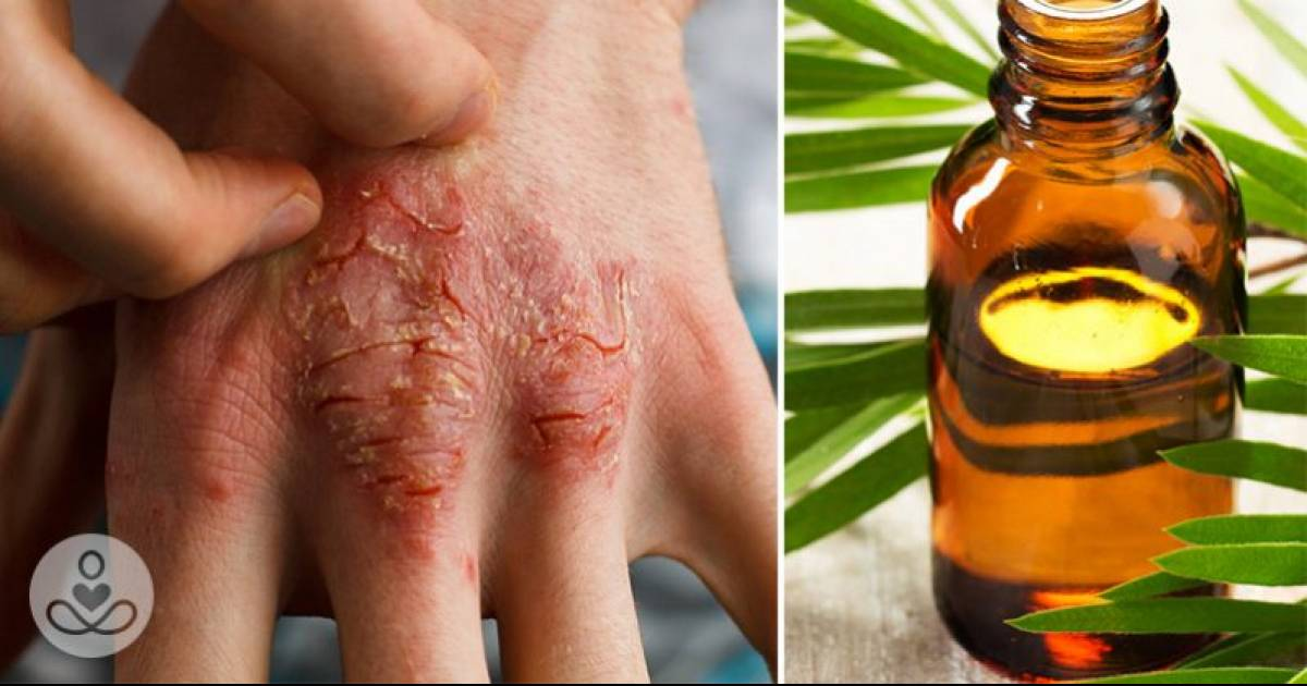Essential Oils For Healing Any Type Of Skin Condition And How To Use Them