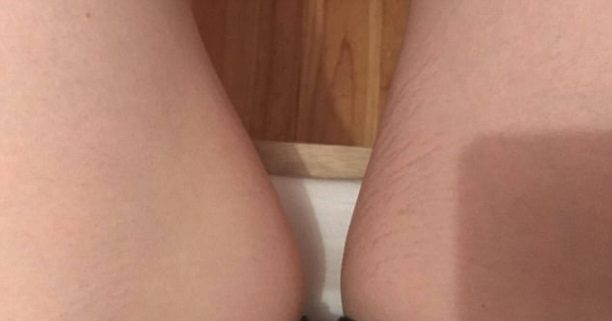 Reddit User Reveals How She Get Rid Of Her Stretch Marks In Just Two Weeks