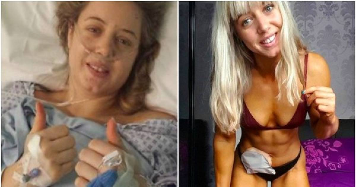 This Inspirational Woman Has A Stoma Bag And Has Become A World Champion Fitness Model