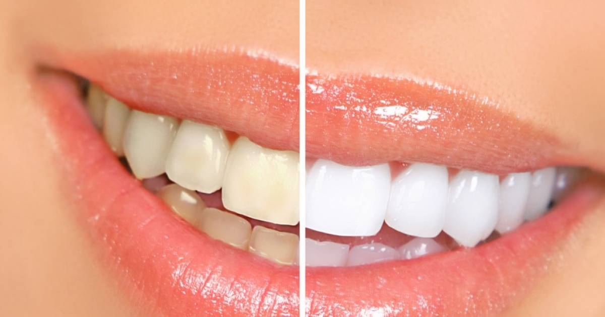 Here Is How You Can Remove Tartar At Home Without Visiting the Dentist