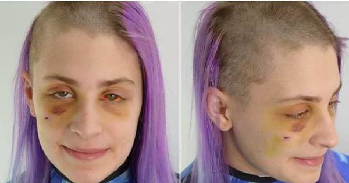 Hairdresser Posts Chilling Photos Of Client To Raise Awareness About Domestic Violence