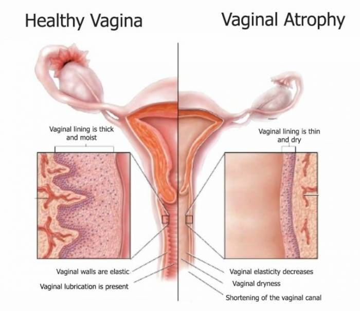 ... people going through menopause are also at risk since they have lower  levels of estrogen. Also, anyone who is receiving treatment for breast  cancer has ...