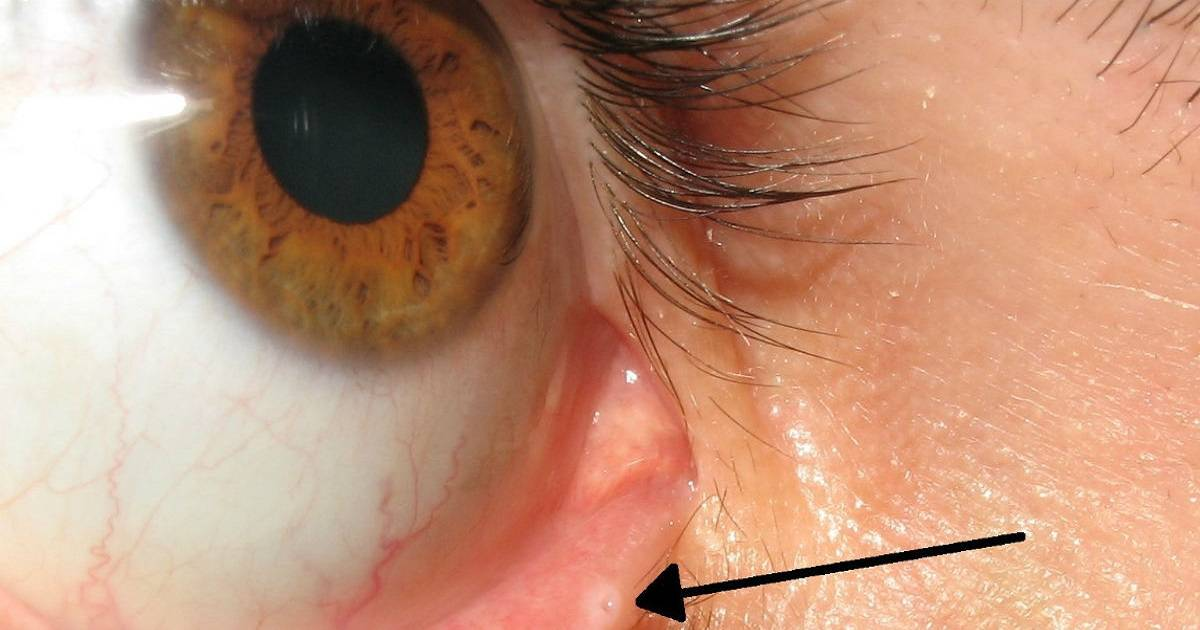 You Probably Never Noticed Tiny Hole On Your Eyelid And Here's What It's For