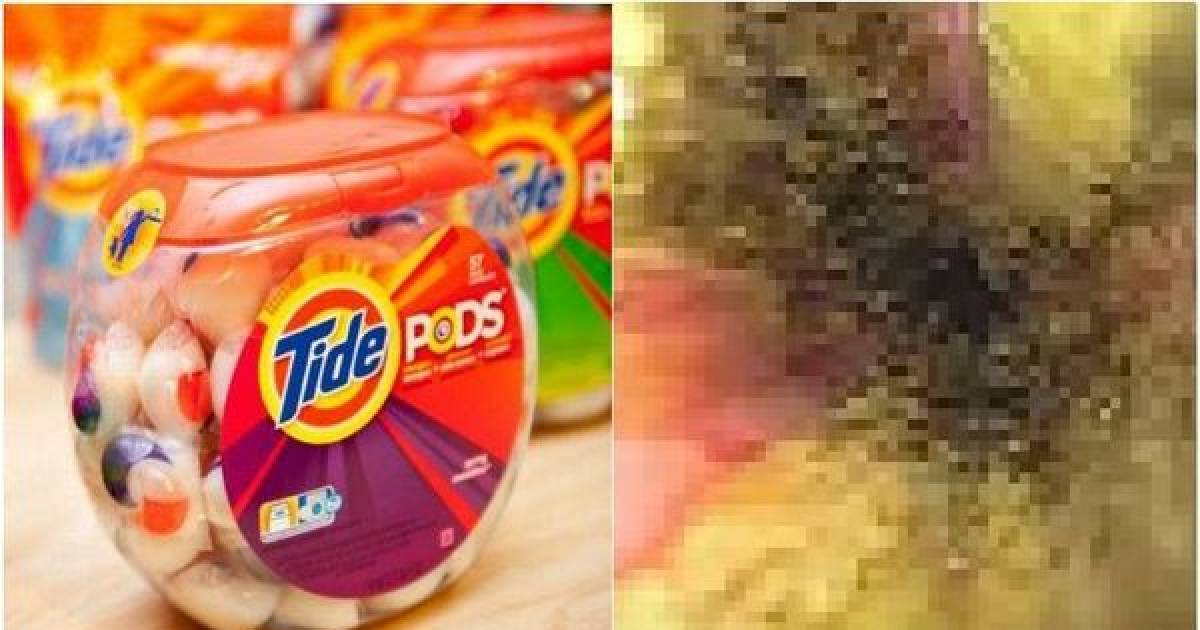 Disturbing Photos Show The Damage Done To His Organs After He Ate Tide Pods
