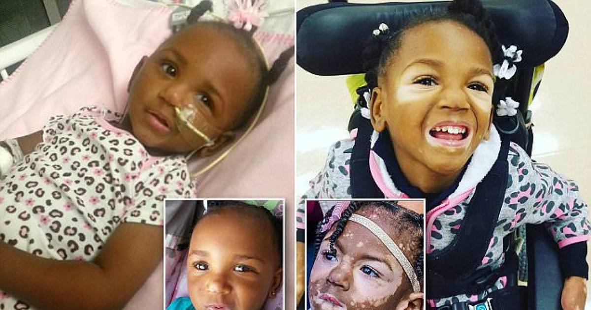 Five-Year-Old Girl Beats Deadly Meningitis But Her Condition Leaves Her With Vitiligo