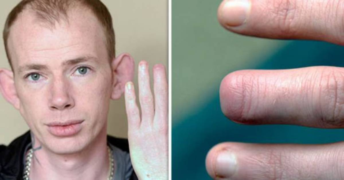 Drunk Man Wakes Up After Boozy Night Out With Top Of Finger Missing And He Has No Idea What Happened