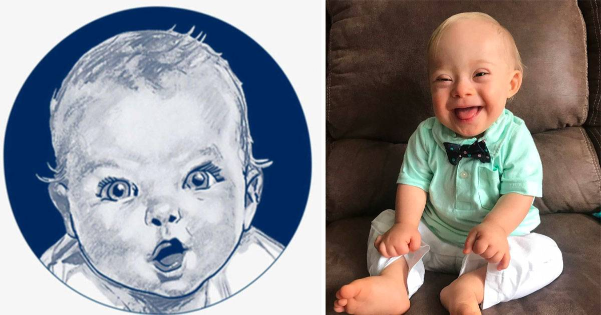 One-Year-Old Lucas Is The First Gerber Baby With Down Syndrome
