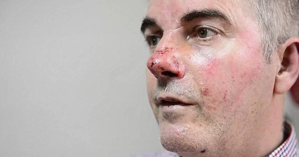 Heroic Dad Left Bloodied After Fighting Off Machete-Wielding Thieves To Protect His Son