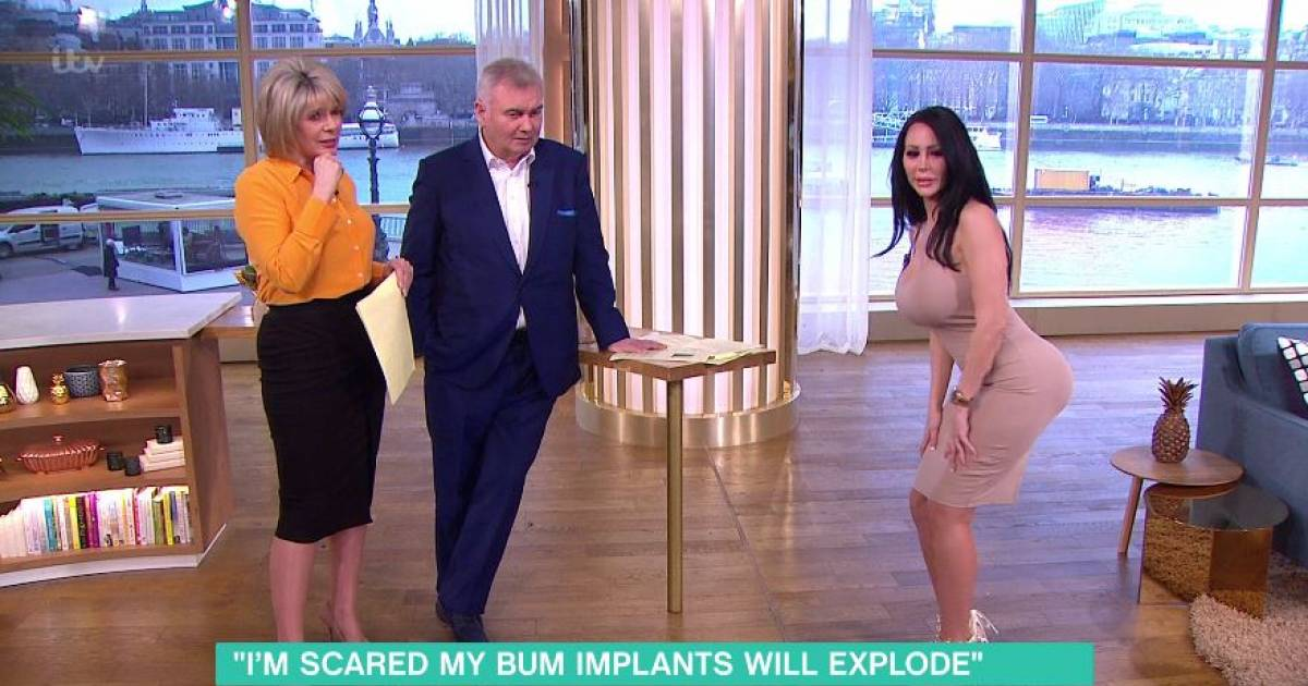 Woman With Botched Butt Implants Can't Sit Because She Fears Her Butt Will Explode