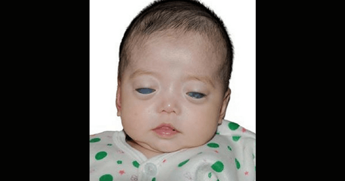 Baby Girl Born With Silver Eyes Finally Gets Adopted By A Loving Family