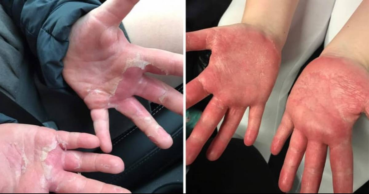Kids Get Third-Degree Burns While Making A Popular DIY Craft 'Homemade Slime'
