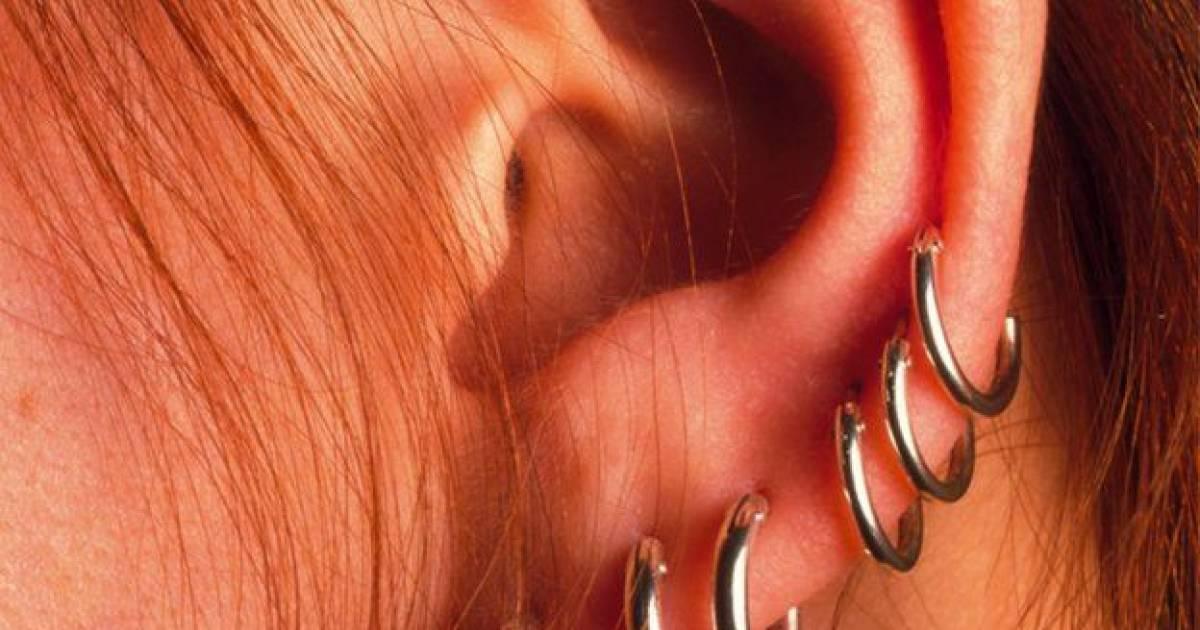 Multiple Risks Of Popular Genital Piercing