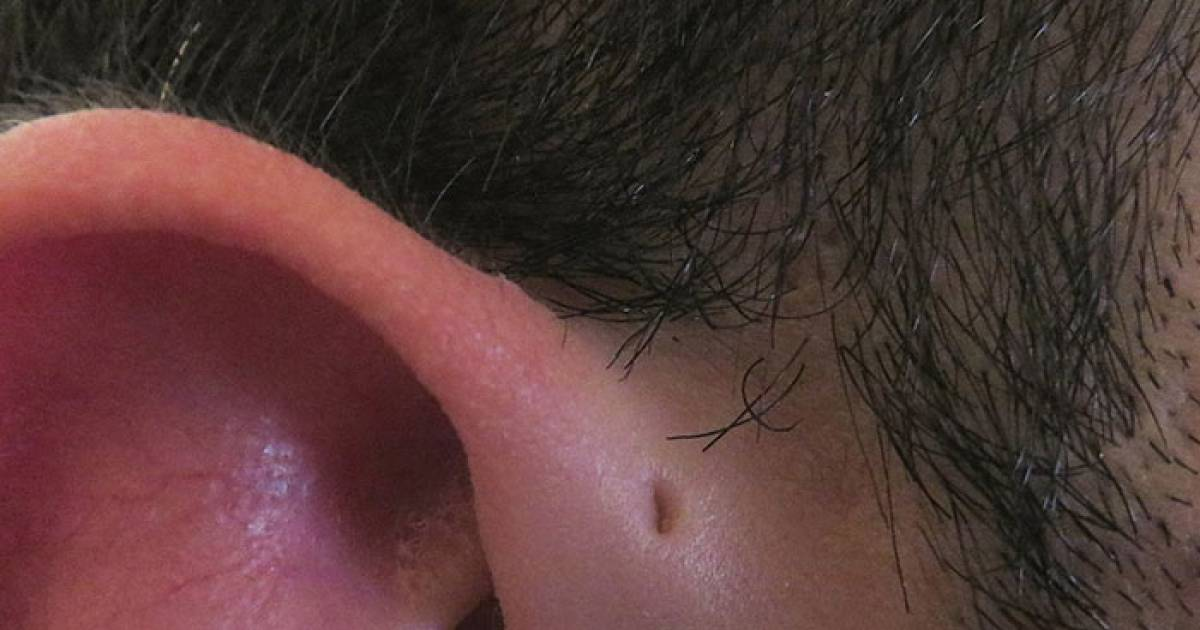 Some People Have Tiny Holes Above Their Ears And There Is A Good Reason Behind It