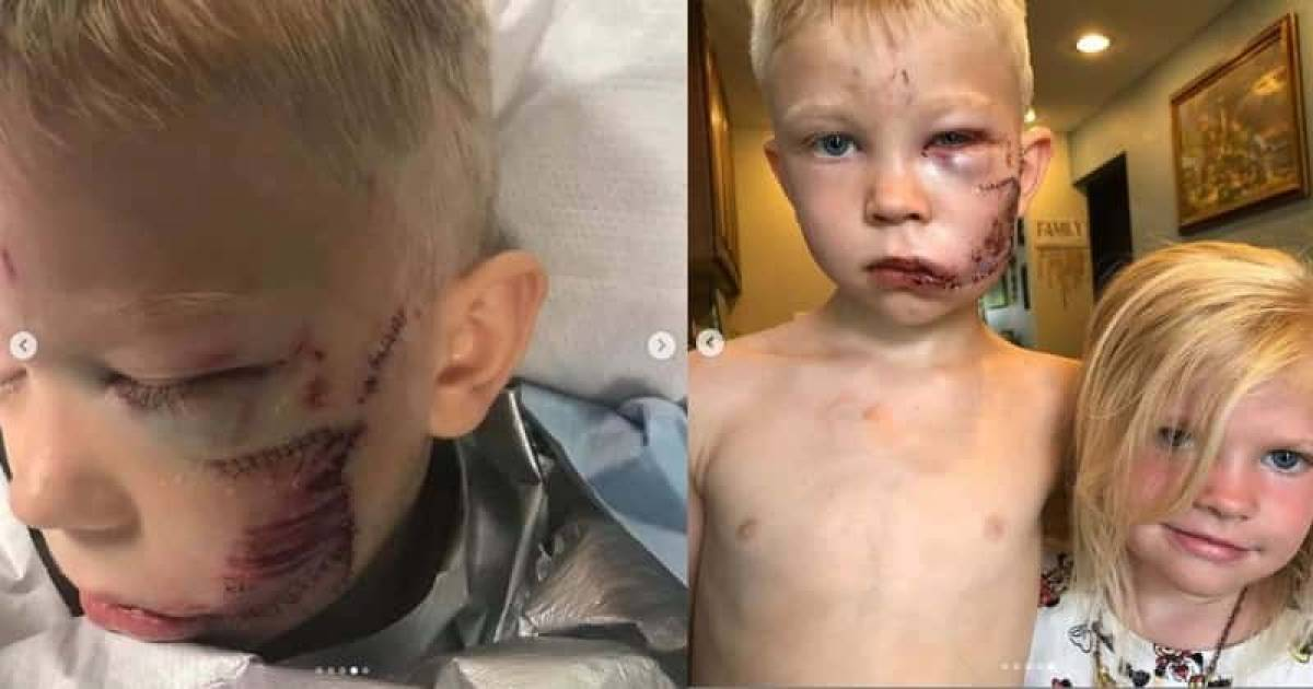 6-Year Old Boy Hailed Hero After He Saves His Little Sister From Dog Attack