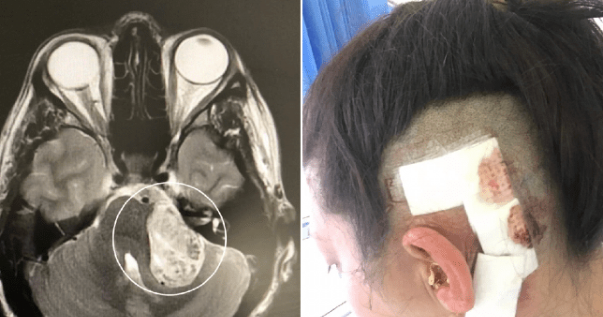 This Woman's Anxiety Was Actually A Tumor Growing In Her Brain For A Decade