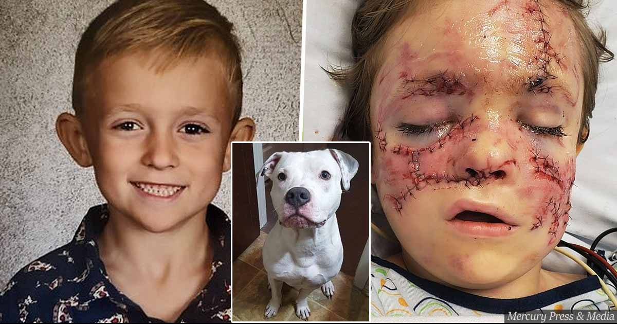 6-Year Old Kid Gets Horrifying Injuries After Getting Mauled By Family Pet Pit Bull Dog Named Chaos