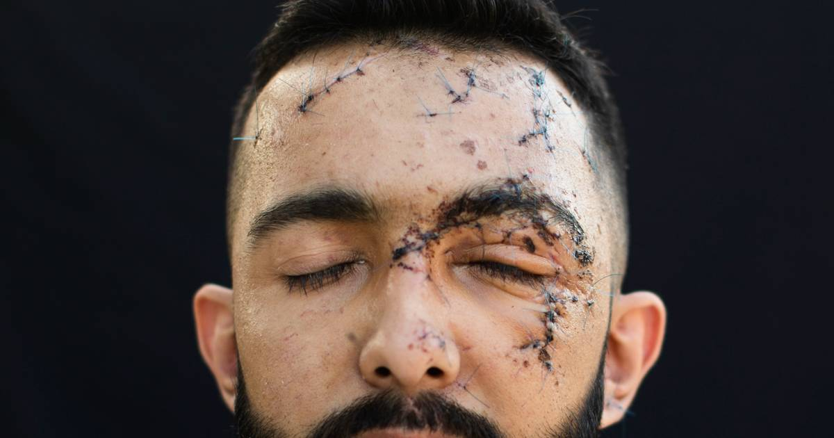 Victims From Beirut Blast Show Off Their Scars To Tell The World The Trauma They Went Through