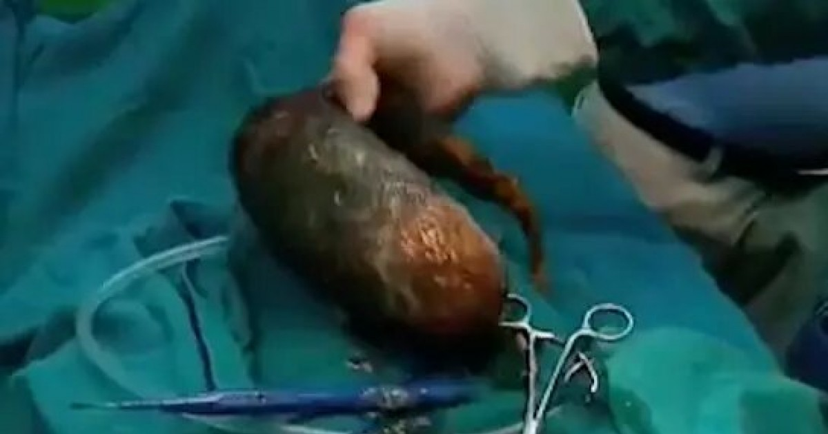 Doctors Remove Massive 15lb Hairball From Teenager's Abdomen