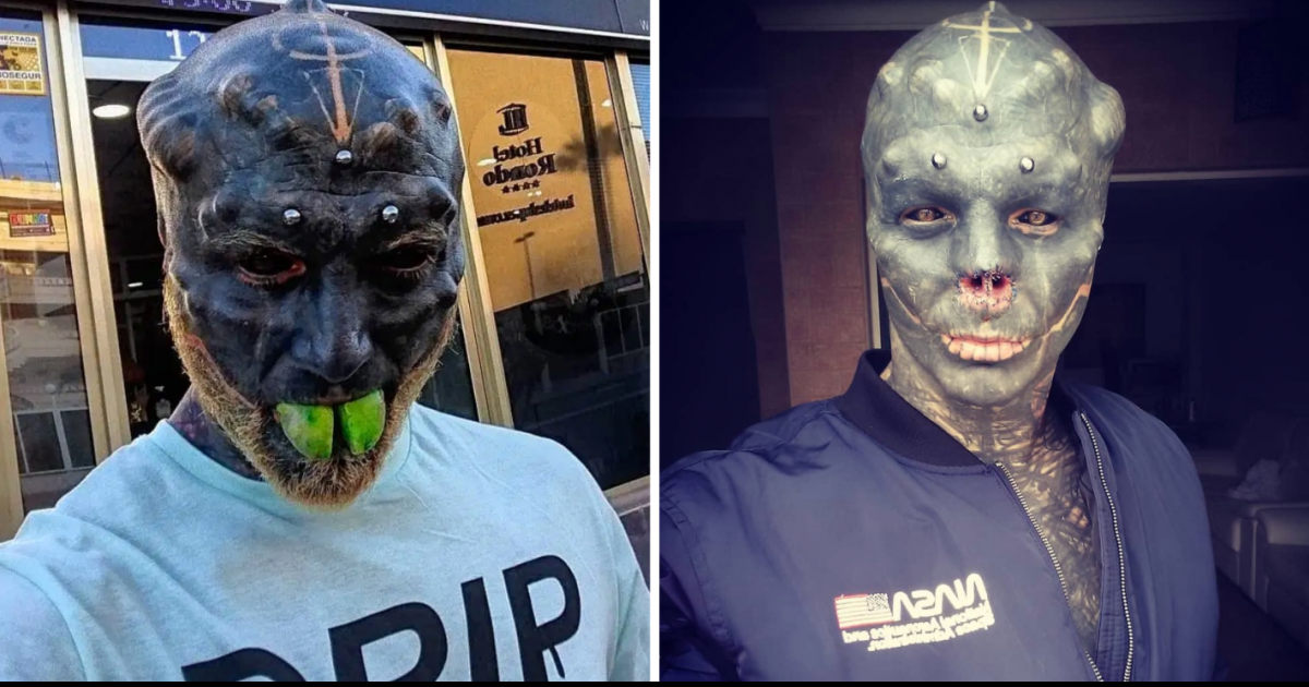 Man Who Wants To Be A Real-Life Alien Has Nose Removed And Tongue Split In Half