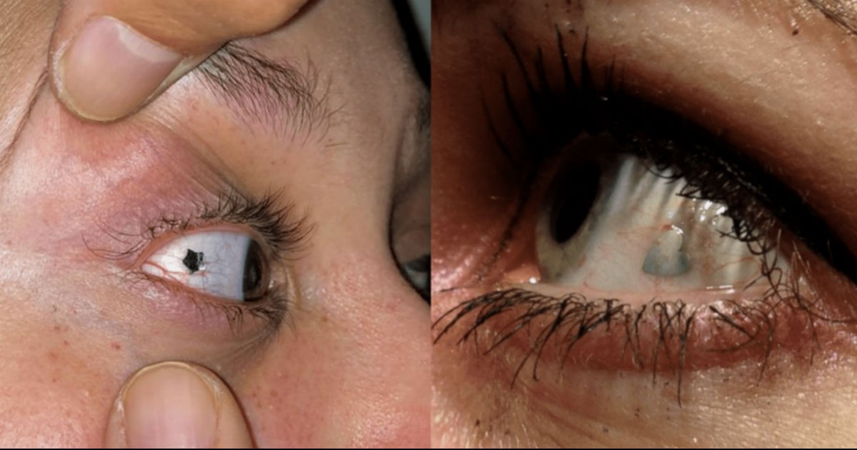 Eyeball Piercing Is 'The Latest Bizarre Fashion Trend' You Need To Know About