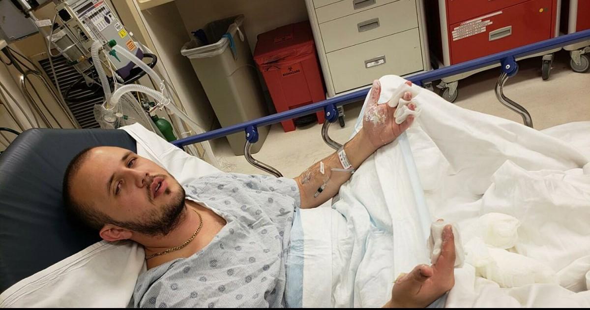 California Man Claims Spilled Starbucks Tea Burnt Him So Badly His Genitals Were Disfigured