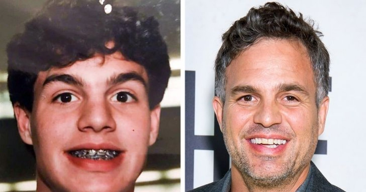 Celebrity Transformation Pictures That Will Leave You Awestruck