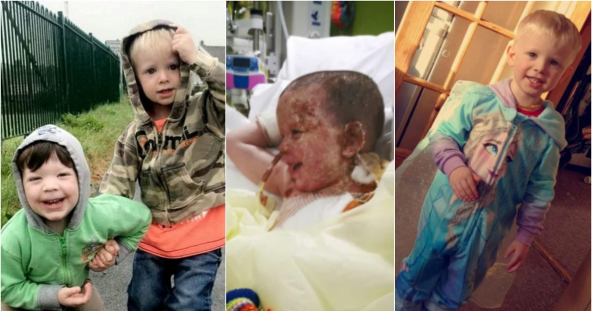 Dad Barged Into A Severely Burning Van To Save His Boys, Thought He Had Saved Both After Grabbing Two Limbs But He Only Rescued One