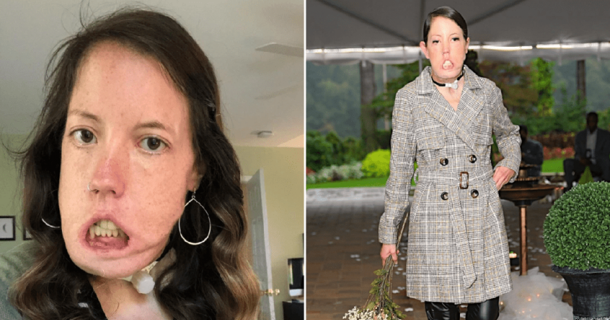 Woman With Disfigurement That Stops Her From Smiling Becomes Catwalk Model