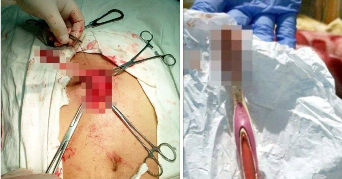 This Bloodied 19cm Long Toothbrush Was Removed From A Man's Stomach After He Accidentally Swallowed It