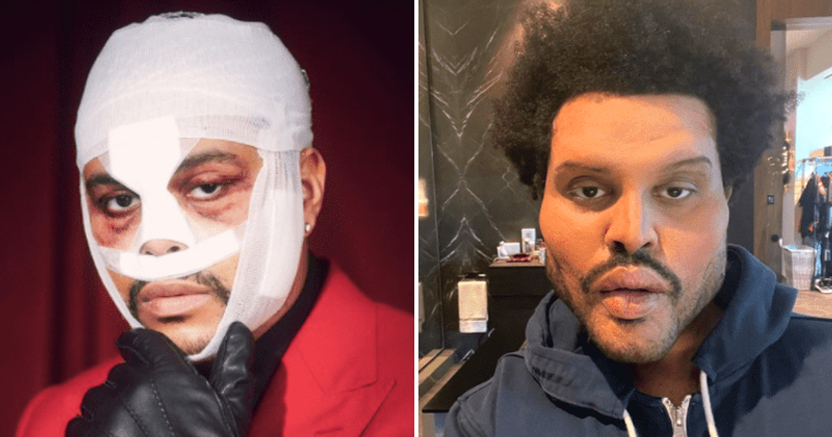 Weeknd's Plastic Surgery Look Leaves Fans Horrified