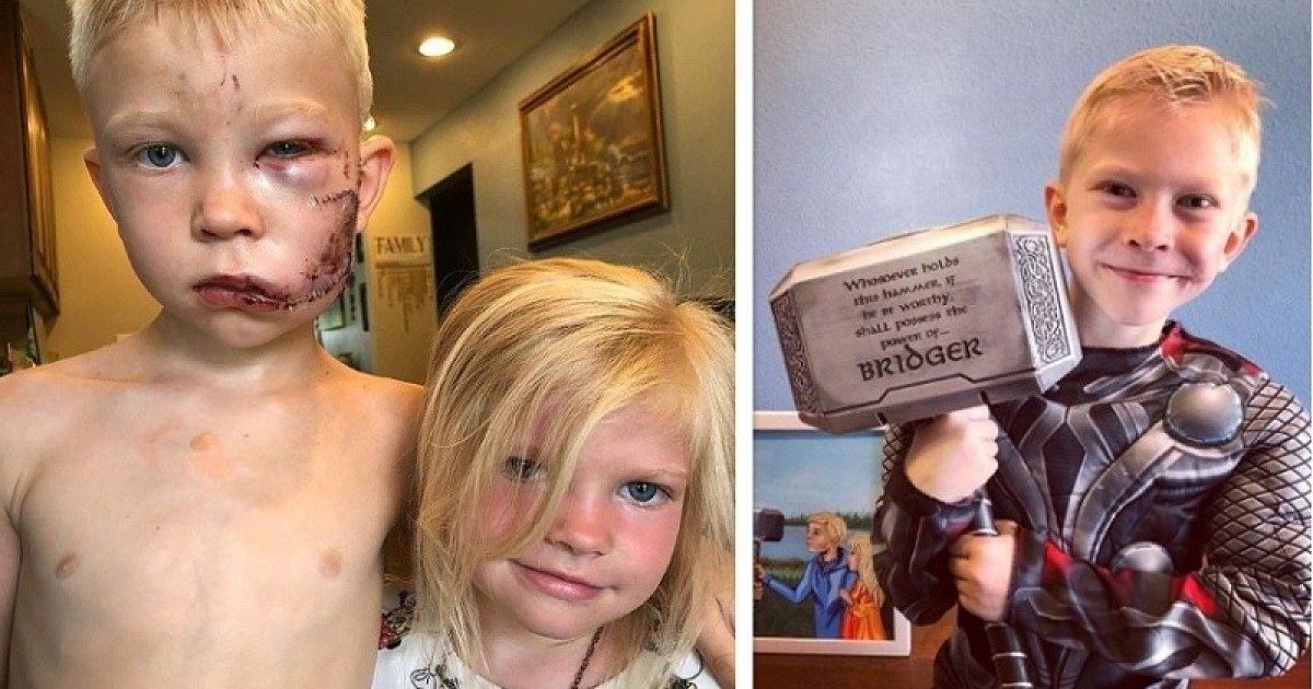 Little Hero Who Came Between A Charged Dog And His Baby Sister Shares Incredible Transformation