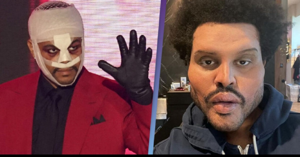 The Weeknd Finally Explains Why He's Been Wearing All Those Bandages