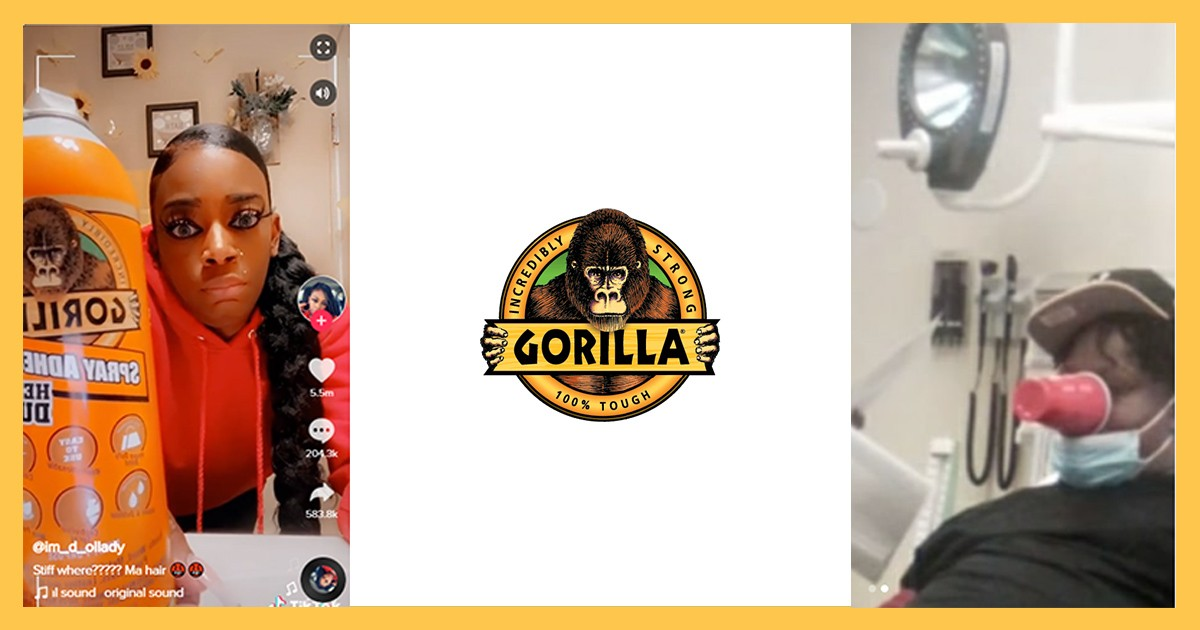 Gorilla Glue Saga Continues As Man Gets Plastic Cup Glued To Face