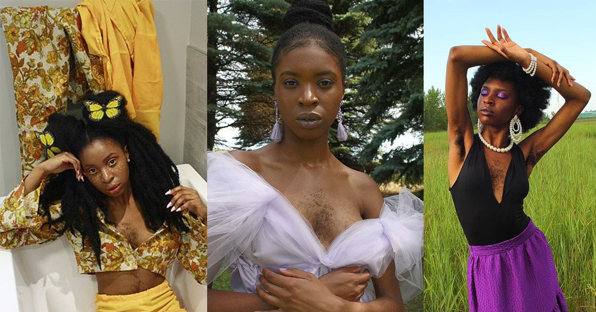 Esther Calixte-bea, 24, Has Revealed She Feels Sexier Than Ever After Embracing Her Chest Hair.